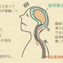 頭蓋治療は、慢性疾患…
