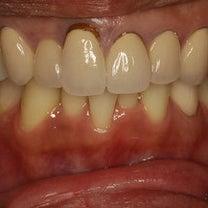 歯茎の黒くなってしまった差し歯をされている方のための審美歯科治療の記事に添付されている画像