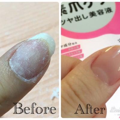 【ジェルネイル→自爪に戻す】ジェルオフ後の毛羽立った爪の表面を整えてケアする方法の記事に添付されている画像
