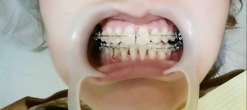 歯列矯正の経過写真(1年半~2年...