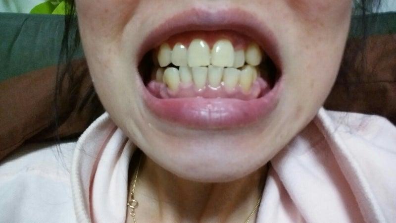 白く する ホイル 歯 を 方法 アルミ
