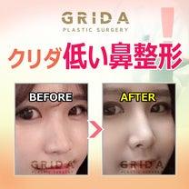 高くてきれいな鼻、クリダ鼻整形。の記事に添付されている画像