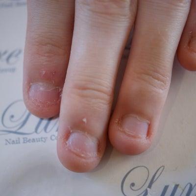 深爪矯正メニューございます☆の記事に添付されている画像