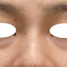 影クマ治療