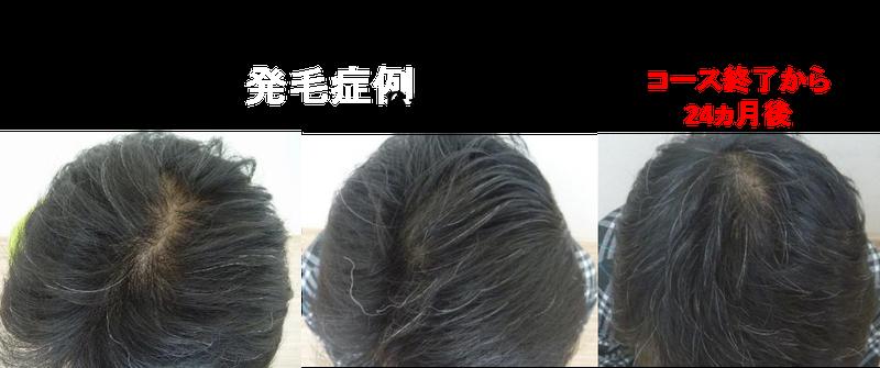 守口 大阪 薄毛