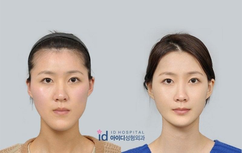ID美容整形外科病院では、両顎手術前に、術後から矯正開始時まで、歯に付けておかなければいけない、自分専用のウェイパー(マウスピース)作成が必要です 王冠