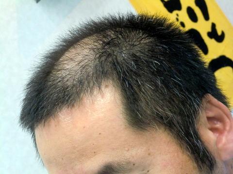 はげ 頭 髪型 頂部 頭頂部の薄毛を目立たなくできる、イケてるメンズ髪型15選!