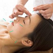 あなたは、なぜ綺麗になりたいのですか?美容鍼が必要な理由は何ですか?の記事に添付されている画像