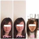 【京都・福知山よりご来店】一回りキュッと引き締まった小顔になりたい♪の記事より