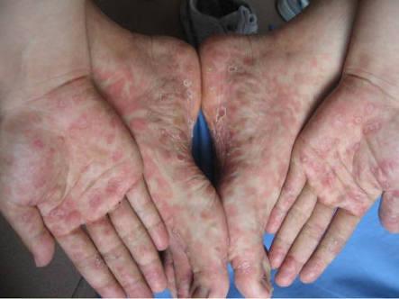 バラ疹は自然に消滅することもあれば、皮膚が盛り上がる梅毒性丘疹に移行することもあります。