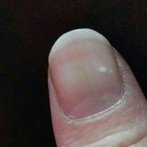 琉球手相~指の爪に出現する白点~の記事に添付されている画像