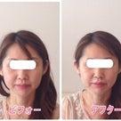 【京都市・下京区よりご来店】頬のたるみスッキリ小顔矯正!!の記事より