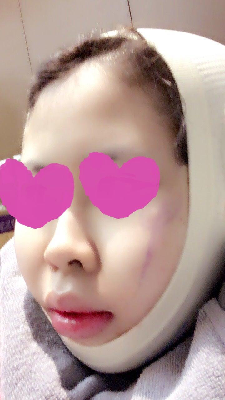 頬骨縮小手術2