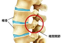 肋骨 痛み 右 下