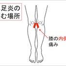膝下の内側の痛み【鵞足炎】の記事より