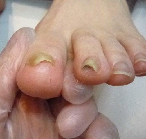 爪の厚みがあるので、爪先が靴に当たって痛い。自分の爪切りでは、この爪を切るのが怖くて切れません。