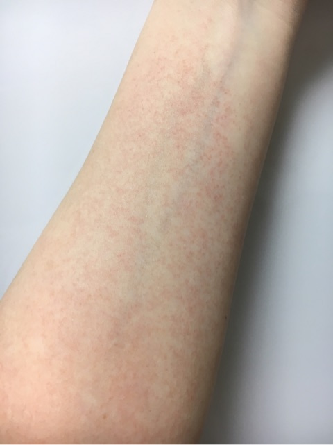 赤い 点々 太もも 足に赤い斑点ができるのは病気?対処方法も紹介!