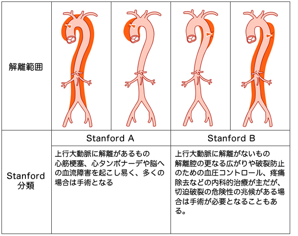 大動脈 解離 心臓