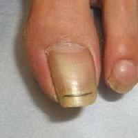 善通寺、丸亀、陥入爪、巻き爪、治療、ふじ