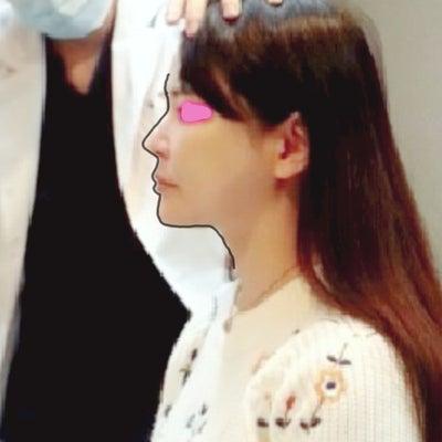 特許を持つ医師が手がけた【整形いらずの鼻フィラー】チョンダム品美活♪の記事に添付されている画像