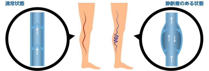 瘤 で 自分 静脈 治す 下肢