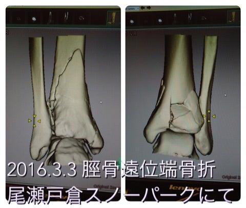 骨折 端 脛骨 位 遠