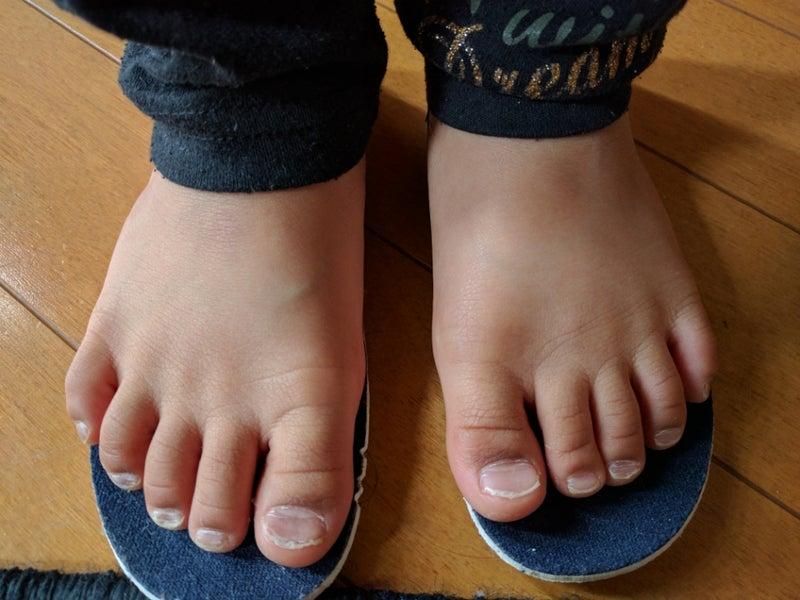 「子供の足 トラブル」の画像検索結果