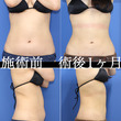 脂肪吸引キャンセル待…
