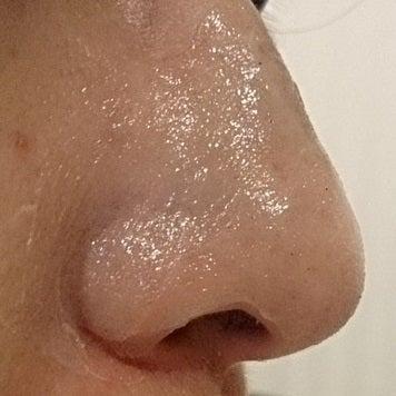 りん パック つる 小鼻 クリーム