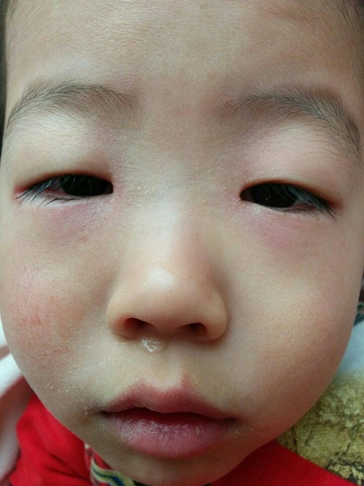 花粉 4 症 歳