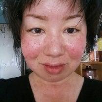 紅い顔(蝶形紅斑)な私の肌とメイクその②の記事に添付されている画像