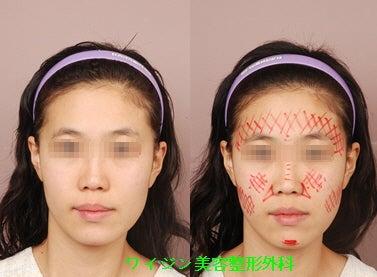 自家脂肪利殖で顔の非対称を治し...