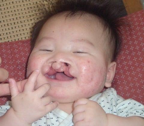 口唇口蓋裂の写真はたくさん撮っ...