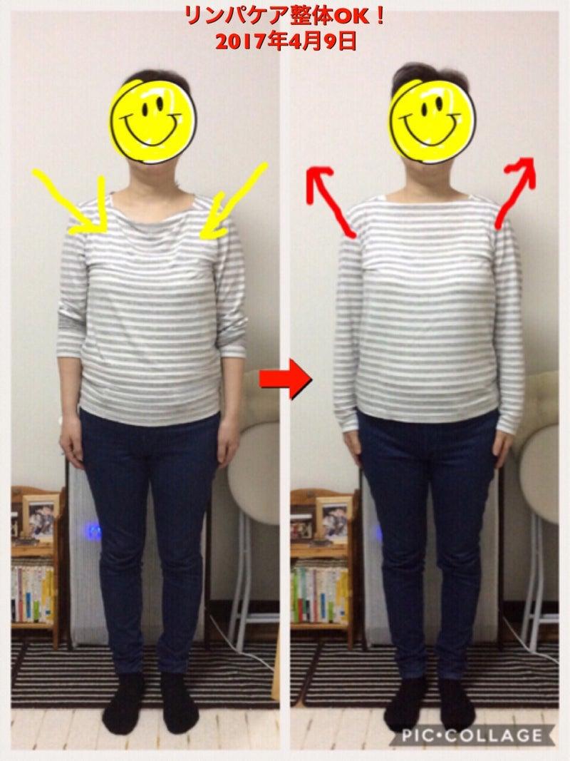 リンパケア整体 比較写真 胸腔変化
