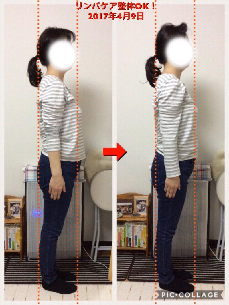 リンパケア整体 比較写真 姿勢ライン引