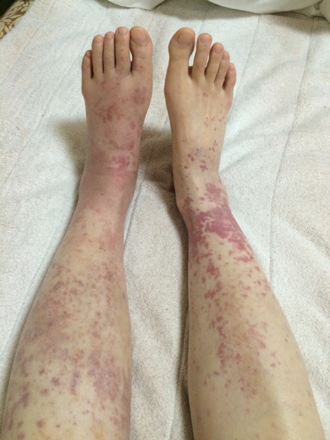 プレドニゾロン50mgと紫斑の足  ...