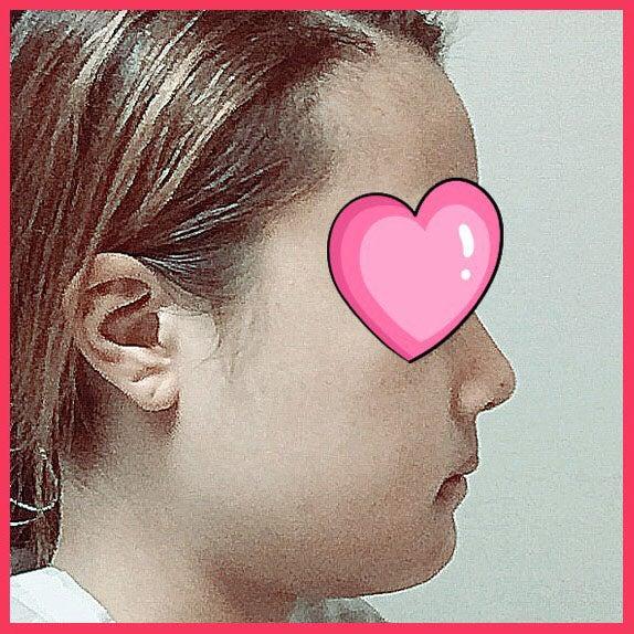 中顔面短縮術