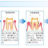 歯周病治療に新素材❗️リグロスの画像