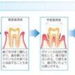 歯周病治療に新素材❗…
