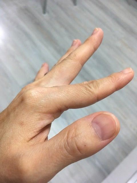 つる 手 の 前兆 が 指 病気
