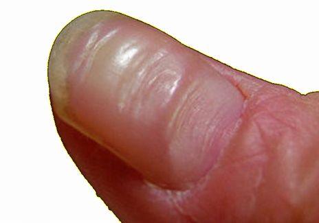 でこぼこ 爪