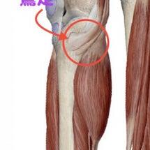 膝の内側の痛み?鵞足…