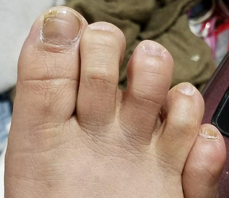 パンパン 病気 腫れる 足 が に