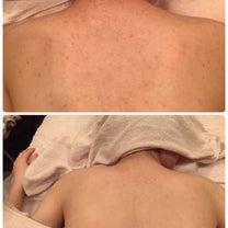 肌見せの準備を始める計画的なお客様♡の記事に添付されている画像