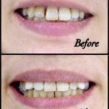 今でも可愛い八重歯に…