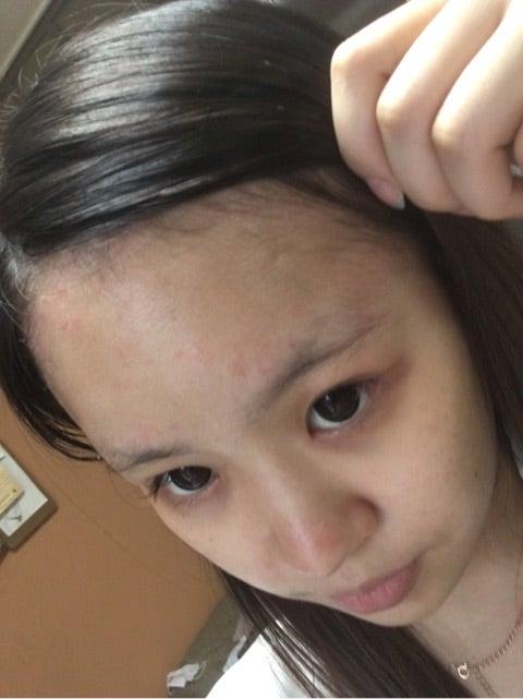 乾癬ブログ08道端アンジェリカ