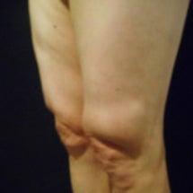 膝上のボテッとした脂…