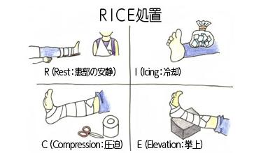 「RICE処置」の画像検索結果