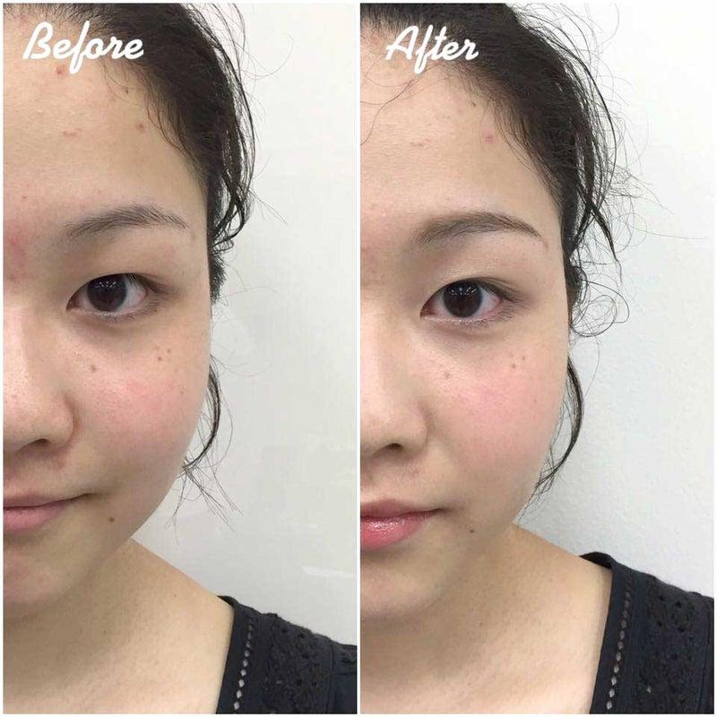 目の周りのくすみ、頬のリフトアップ、肌の透明感、洗顔 ...