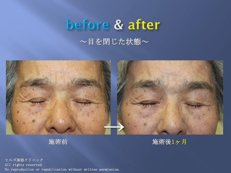 眼瞼下垂before & after 閉眼